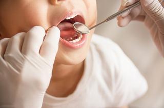 乳歯のむし歯治療